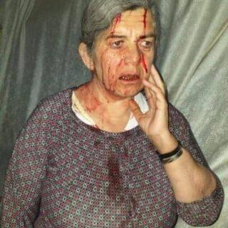 ميليشات pyd_pkk تعتدي على رجل وزوجته  بالضرب .